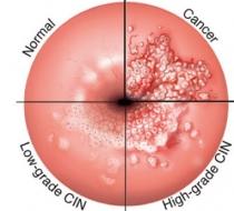 hpv nitrogén tedavisi